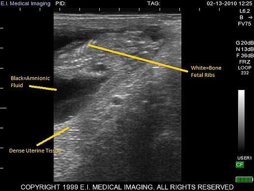 bovine ultrasound, heifer calf fetal sexing