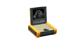 Ibex portable ultrasound