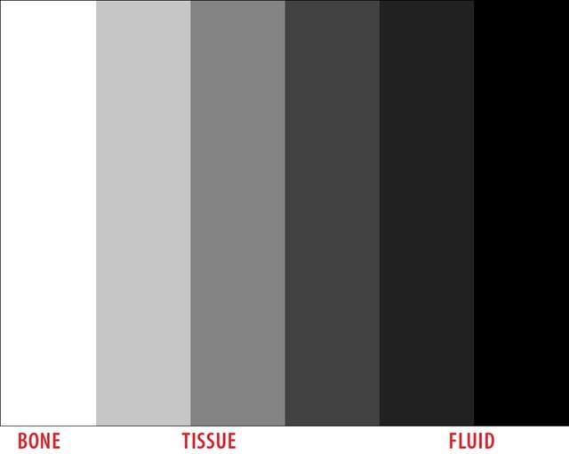 ultrasound-gray-scale